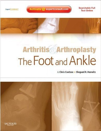 Resim Arthritis and Arthroplasty: The Foot and Ankle