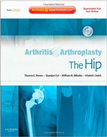 Resim Arthritis and Arthroplasty: The Hip