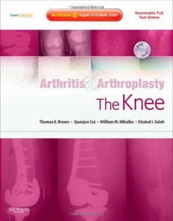 Resim Arthritis and Arthroplasty: The Knee