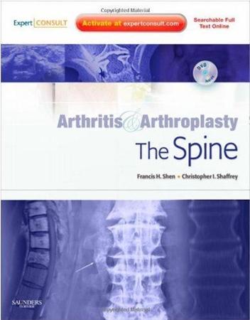 Resim Arthritis and Arthroplasty: The Spine