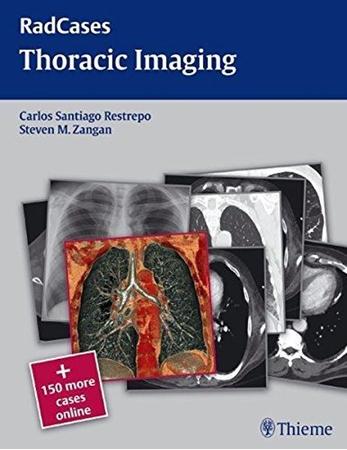 Resim Radcases Thoracic Imaging