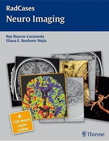 Resim RadCases Neuro Imaging