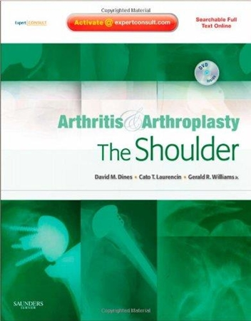Resim Arthritis and Arthroplasty: The Shoulder