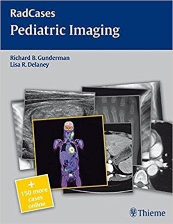 Resim Pediatric imaging