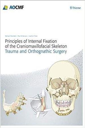 Resim Principles of Internal Fixation of the Craniomaxillofacial Skeleton