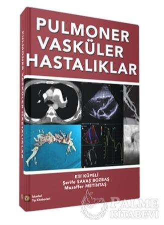 Resim Pulmoner Vasküler Hastalıklar